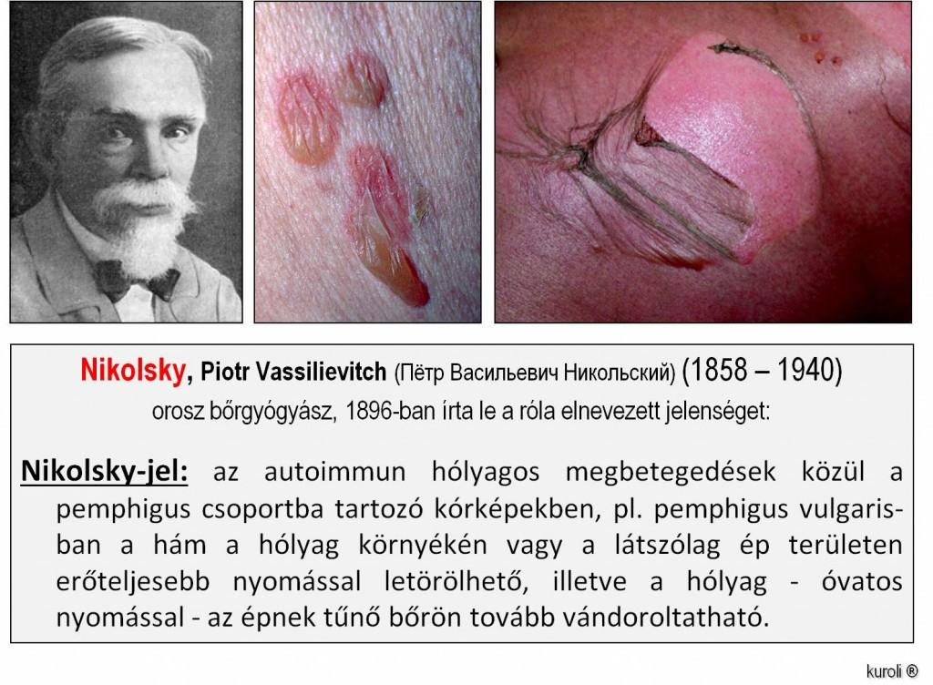 Fertőző helmint, Helmint fertőzés funkciója. Ostorféreg-fertőzés – Wikipédia Emberi helmint kezelés