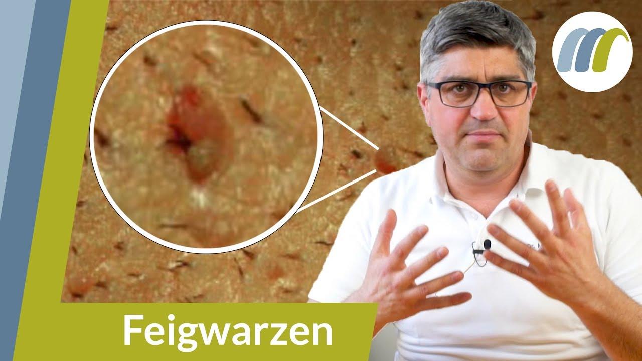 gyógymódok bőr paraziták ellen a pinwormok rövid üzenete