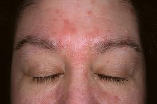 seborrheás dermatitis