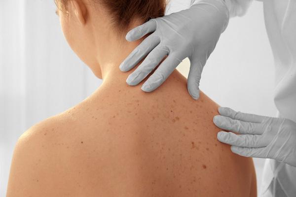 fertőző bőrrák A HPV valószínűleg meggyógyul