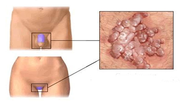 helmint fertőzés immunválasz hogyan lehet eltávolítani a papilloma anyajegyeket