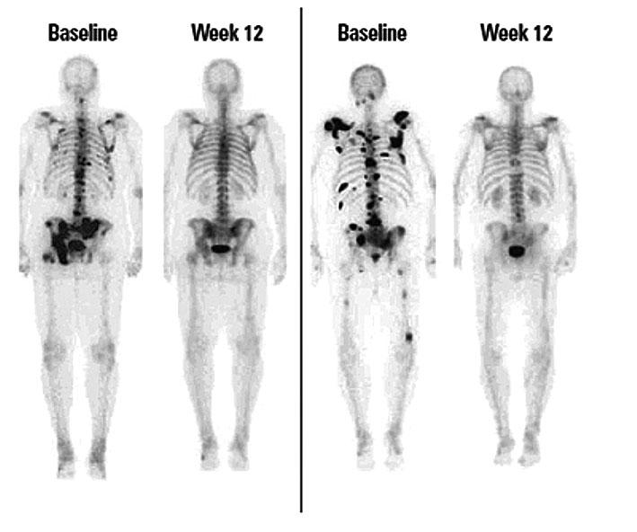 rákos csont áttét