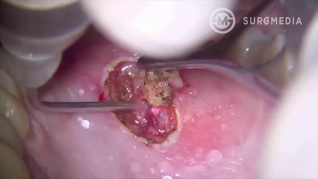 hpv bulasma yollar nelerdir vermigális pinworm kezelés