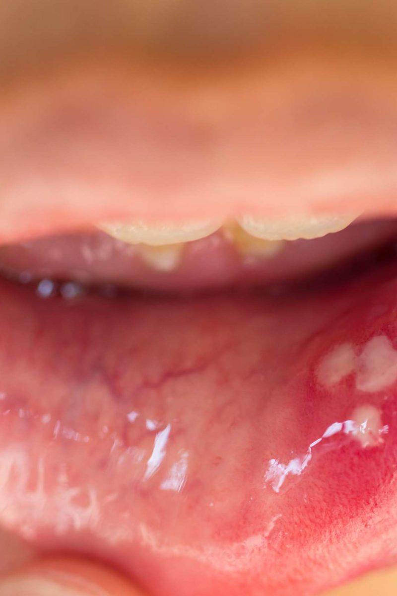 HPV - Dr. Szabó György Róbert - Átvitel papilloma vírus fürdő
