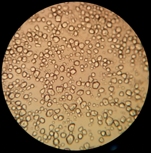 Ami papillómákat okoz a nőknél - Bancroft filaria