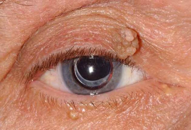 A szemölcs eltávolítása, kezelése