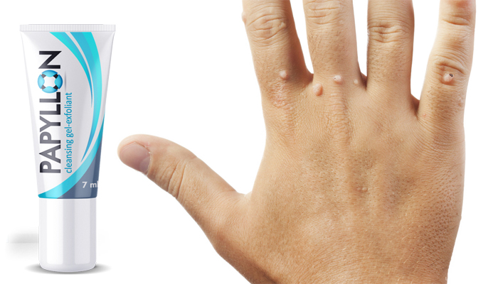 az ujjak papillómájának kezelése