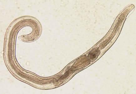 enterobius vermicularis magyarul