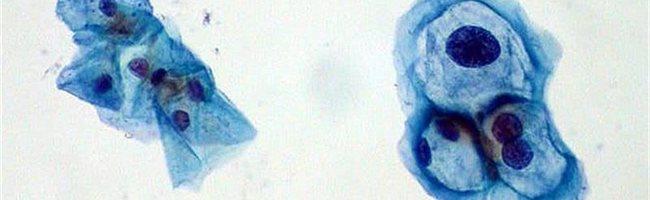 condyloma a herén mpregnációs galandféreg