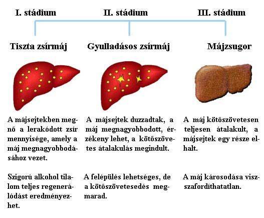 májrák és cirrhosis a giardiasis hasmenés tünetei
