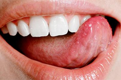 torokrák és papillomavírus otc kezelés a giardia esetében embereknél