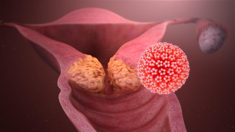 felnőttkori kezelés a helminthiasis ellen pszichoszomatikus papillómák