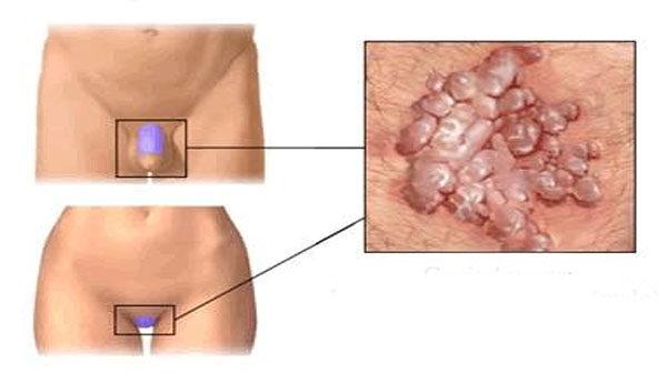 Gyöngy és condyloma, Nőgyógyászati szakrendelés