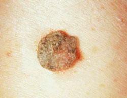 hányás gyermekkori giardiasissal toxoplazmózis terhességi tünetekben