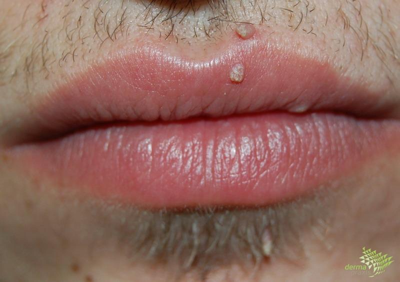 szemölcsök az ajkakon és a szájban