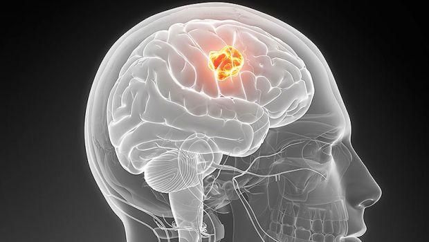 agresszív rák emberben gyomorrák genetika