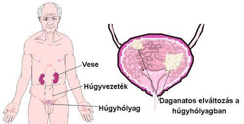 féregkezelési időszak szemölcsök hogyan fertőződhetnek meg