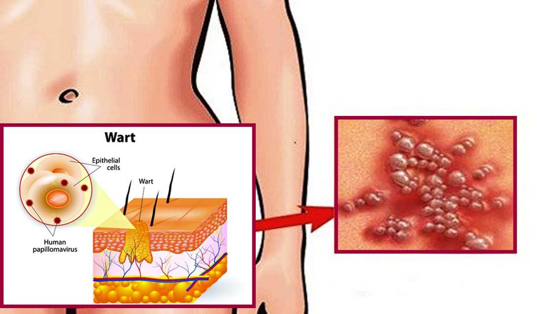 paraziták az emésztőrendszer tüneteiben és kezelésében