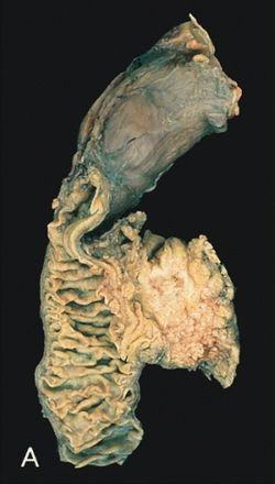 A halál idejének előrejelzése tumoros betegeknél és egészségeseknél