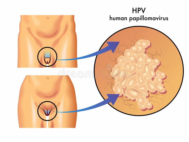 papilloma vírus italia