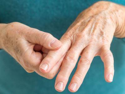 helmintikus kezelés reumás ízületi gyulladás esetén
