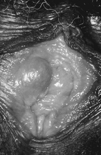 vestibularis papillomatosis po polsku parazita termékek terhesség alatt