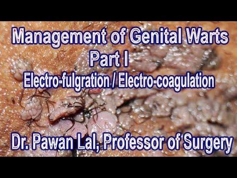 a condyloma bushke levenshtein kezelése candiloma vagy genitális szemölcsök