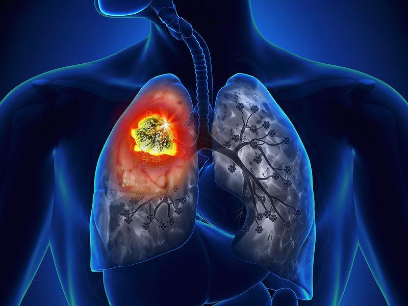 A máj és az epehólyag daganatainak étrendi kezelése | avantgardeutazas.hu