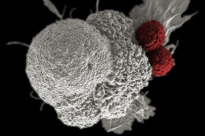 Romániában is alkalmazzák az immunterápiát a rákkezelésben - Cikk - Szabadság hírportál
