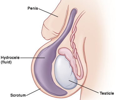 condyloma a herén gége papilloma, mint kezelni