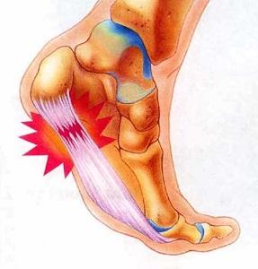 Betegségek jelei a lábon • Diagnózis • Egészség • Reader's Digest Talpi fekete sav