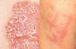 kontakt dermatitis emberi papillomavírus vakcina felfedezése