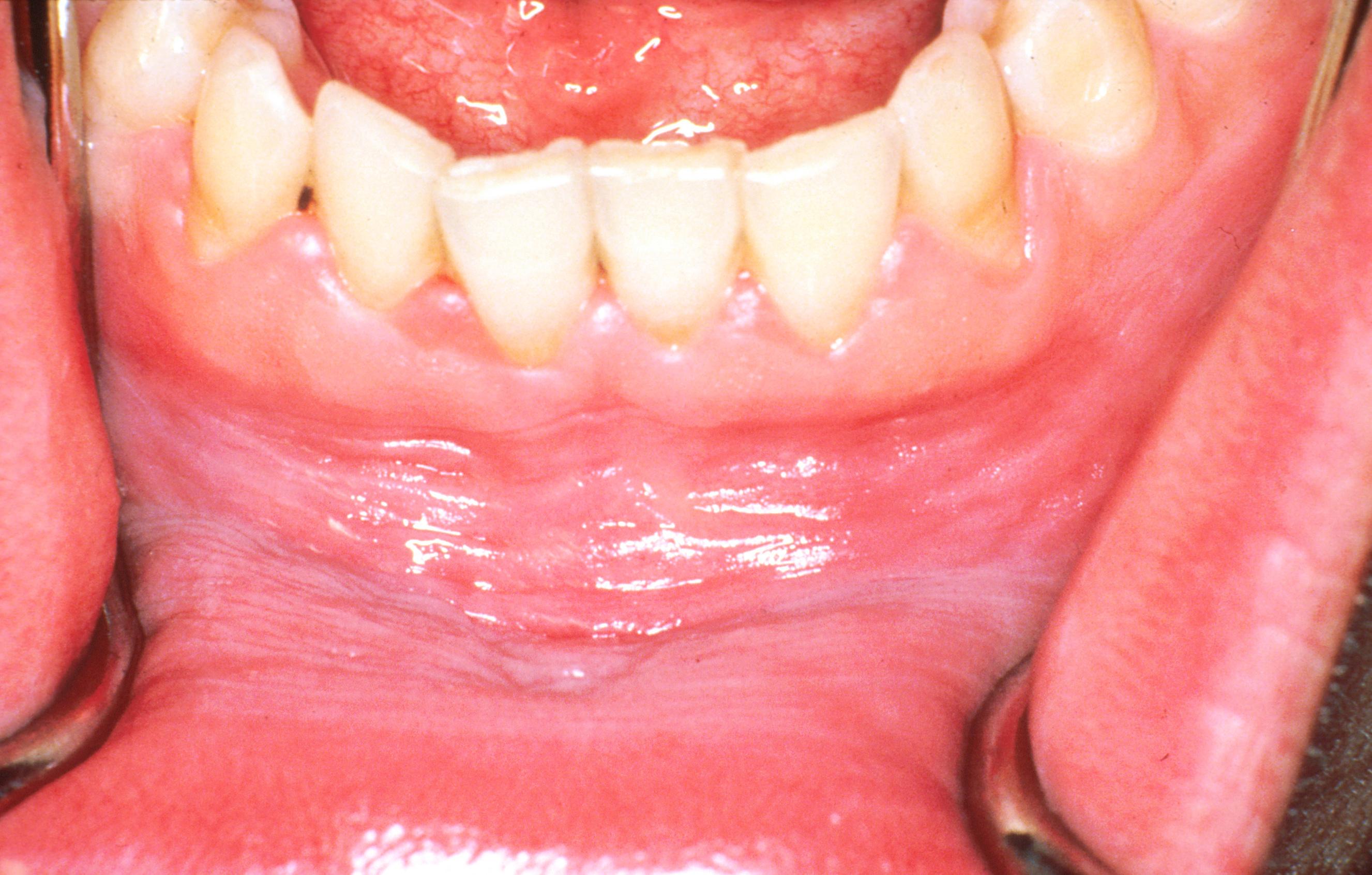 Belső szemölcs a szájban (jelige: csillag)   Rákgyógyítás