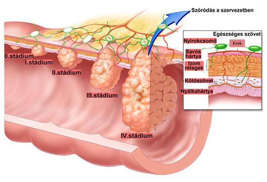 vastagbélrákos nők tünetei
