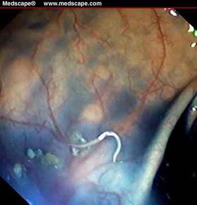 A Magyarországon előforduló féregfertőzések Helminthiasis kezelése vermoxmal