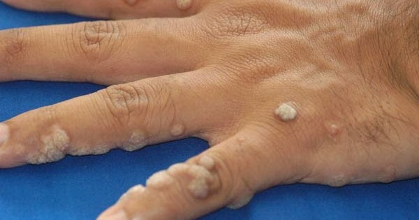 talpi sebek sérültek nitrogén után homoktövis gyertyák a genitális szemölcsökhöz
