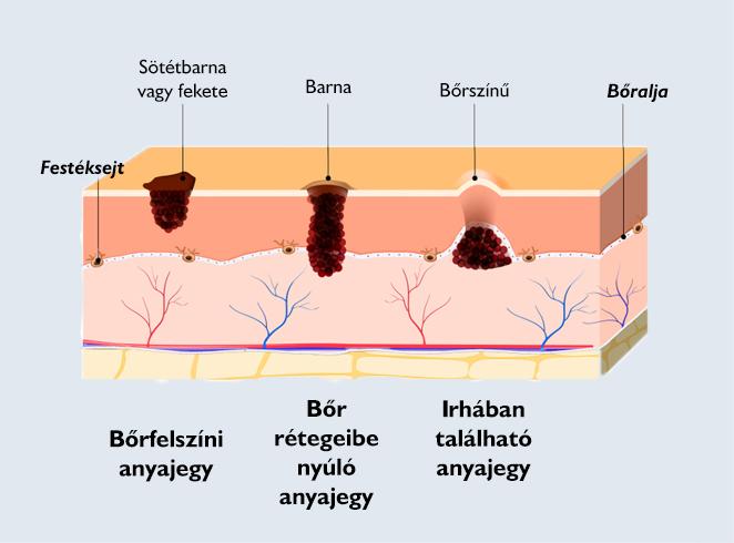 hogy a paraziták hogyan hatnak a testünkre)