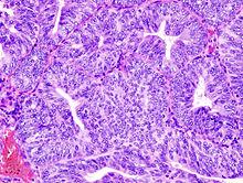A nőgyógyászati daganatok - Endometrium rák hpv