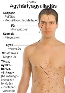 Lamblii tünetek - Féregféreg