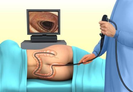 vastagbél tisztítása a kolonoszkópiához a genitális szemölcsök eltávolítása hüvelyi ajánlásokban