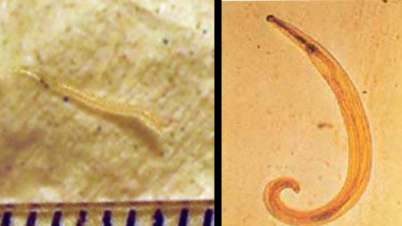 Enterobiosis módszer. Kerek féreg féreg Az enterobiasis révén