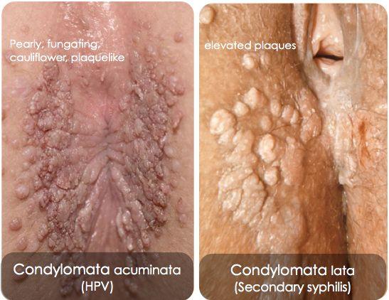 Anus condyloma kezelése