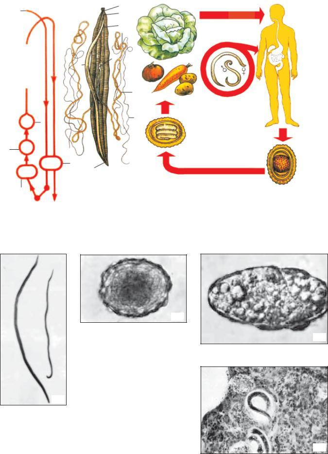Trichocephalosis parazitológia. Trichuris trichura fonalfereg a szemben