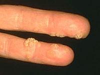 hpv szemölcs krém cvs az emberi papillomavírus fertőzés segédeszközöket okoz