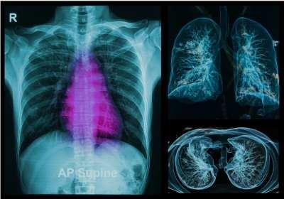jóindulatú és rosszindulatú tüdőrák