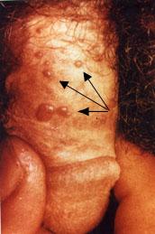 a genitális szemölcsök kezelése a végbélnyílásban)