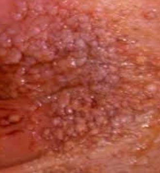 hpv genital siil