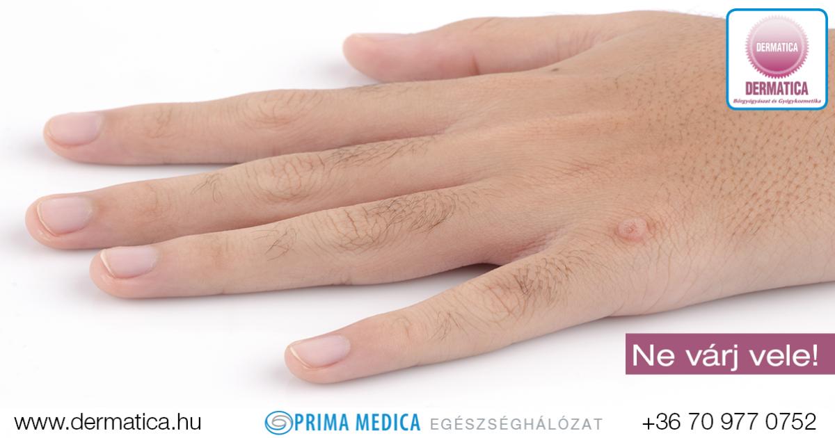 Vírusos szemölcsök – Szemölcsök bőrgyógyászati kezelése