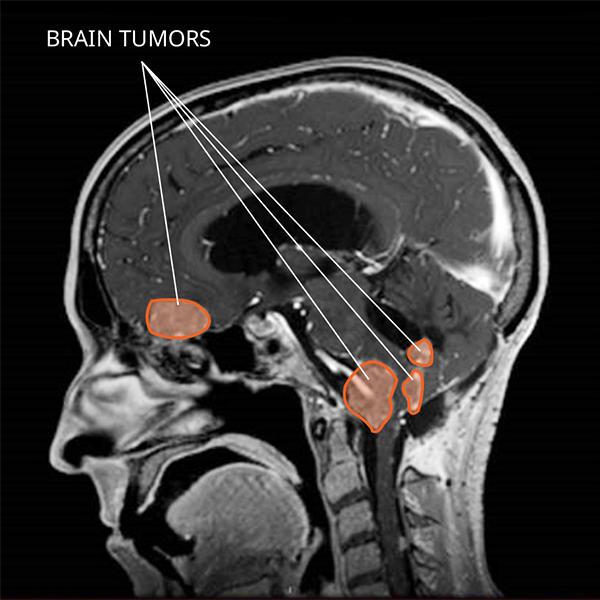choroid plexus papilloma tumor pillangó zeugma 2020