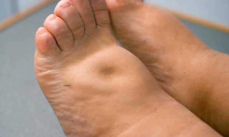 emberi papillomavírus lábak)